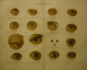 1897 Original Farblithographie- Augenkrankheiten